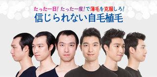 男性の植毛.jpg